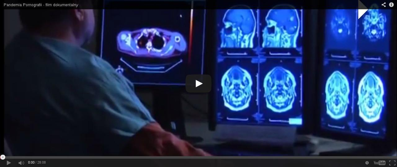 Pornografia ryje mózg